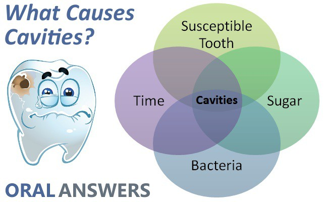 caries causes